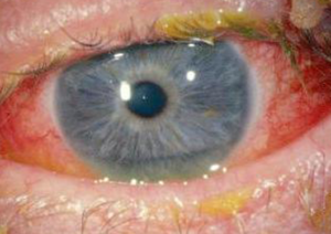 Bacterial-Conjunctivitis Pink Eye Treatment | Lang Family Eye Care | New Berlin, WI