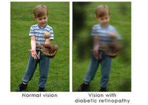 Diabetic Retinopathy vision example | New Berlin, WI Eye Doctor | Lang Family Eye Care