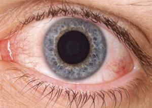 Dry Eye Syndrome Chronic Dry Eye   New Berlin, WI Eye Doctor   Lang Family Eye Care