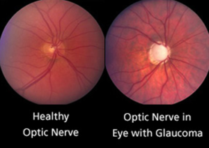 Glaucoma Treatment Specialists | Lang Family Eye Care | New Berlin, WI
