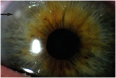 Contact Lens Induced Pink Eye Treatment | Lang Family Eye Care | New Berlin, WI