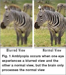 Lazy Eye Amblyopia Treatment | New Berlin, WI Eye Doctor | Lang Family Eye Care