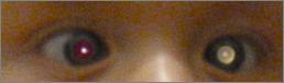 Congenital (Pediatric) Cataracts   Lang Family Eye Care   New Berlin, WI
