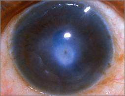 Corneal Ulcer Pink Eye Treatment | Lang Family Eye Care | New Berlin, WI