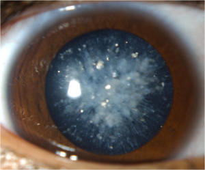 Cortical Cataract | Lang Family Eye Care | New Berlin, WI