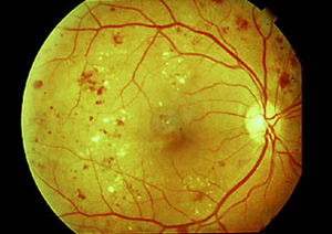 Diabetic Retinopathy | New Berlin, WI Eye Doctor | Lang Family Eye Care