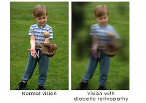 Diabetic Retinopathy vision example   New Berlin, WI Eye Doctor   Lang Family Eye Care