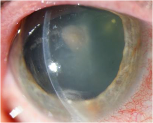 Fungal Pink Eye Treatment | Lang Family Eye Care | New Berlin, WI