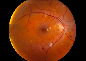 Hypertensive Retinopathy High Blood Pressure | Lang Family Eye Care | New Berlin, WI