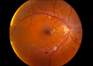 Hypertensive Retinopathy High Blood Pressure   Lang Family Eye Care   New Berlin, WI