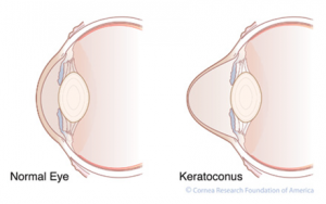 Keratoconus | Lang Family Eye Care | New Berlin, WI Eye Doctor