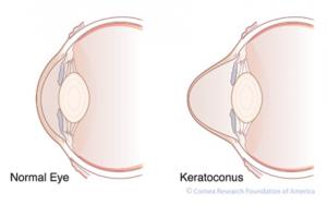 Keratoconus   Lang Family Eye Care   New Berlin, WI Eye Doctor
