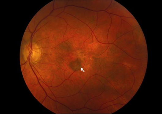 Age Related Macular Degeneration Lang Family Eye Care