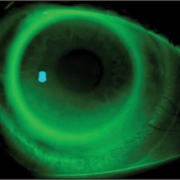 Syneregeyes Contact lenses